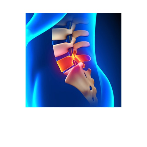 Lumbar Spine Fusion Surgery